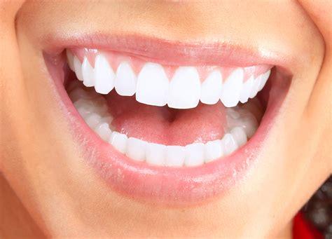 smile makeover major dental clinics