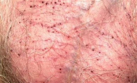 image gallery penile angiokeratoma