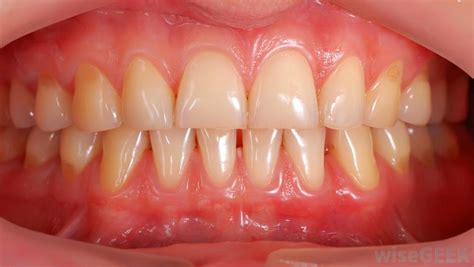 healthy gums what is gingival tissue with pictures