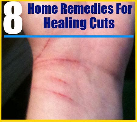 the top 8 home remedies for healing cuts