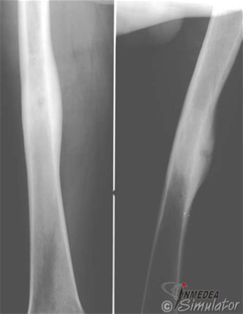 osteoidosteom