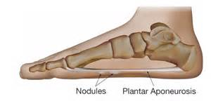 plantar fibromatosis affiliated foot and ankle surgeons