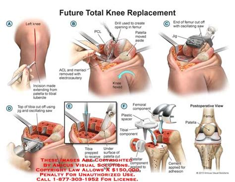 total knee replacement diagram amicus illustration of amicus surgery total knee
