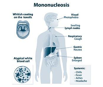 test per mononucleosi la mononucleosi infettiva