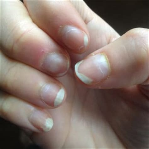 nail separating from nail bed elite nails nail salons gilbert az reviews photos yelp