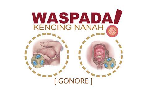 Obat Sipilis Raja Singa Kencing Nanah Gonore obat kencing nanah herbal obat sipilis gonore