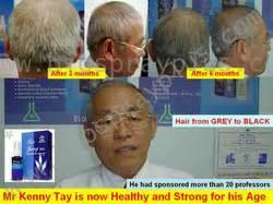 Bionat Spray Obat Luka Diabetes Dan Luka Kronisakut testimoni bio spray biospray plus obat diabetes obat jantung obat stroke obat gagal