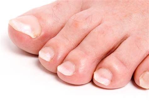 swollen toenail bed nail infection swollen toe