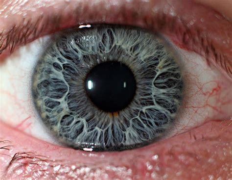 how to lighten eye color eye health doctor insights on healthtap