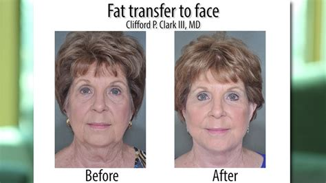 plastic surgery or natural aging changes aging through the decades the plastic surgery channel