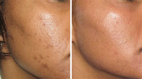before picosure treatments and 2 weeks after my laser pigmentation sun damage 171 advanced laser therapy