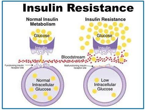 creatine and diabetes creatine and insulin sensitivity robbins fitness