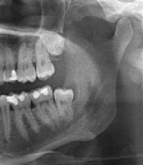wann zahn ziehen op weisheitszahn bedeutet weisheitszahn ziehen sinnvoll