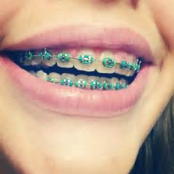 color of braces gallery braces color ideas for summer