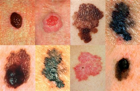 About My Skin Cancer by Skin Cancer Pictures