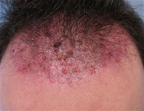 does hair bumps hurt pimples on scalp painful on head that hurt won t go