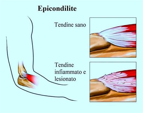 tendinite gomito interno massaggio trasverso profondo o cyriax per cicatrice