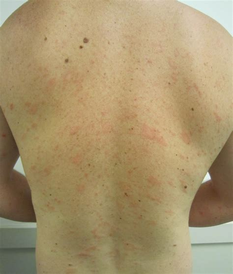 christmas tree virus rash pityriasis rosea