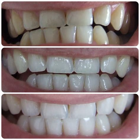 crest 3d white whitestrips with light teeth whitening kit crest 3d white professional effects end 11 25 2018 8 24 pm