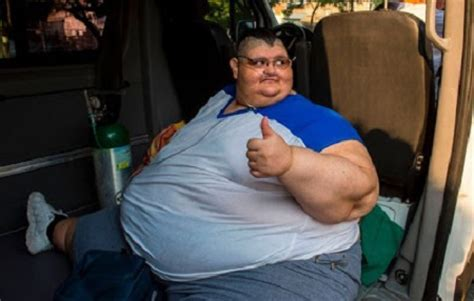 fattest person in the world world s fattest man undergoes life saving surgery after