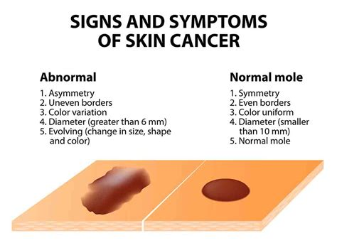 differences between malignant melanoma and a normal mole melanoma the scary link between diet and skin cancer