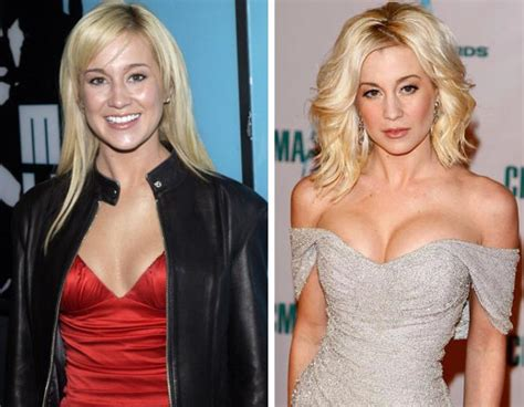 face shape for kelly pickler kellie pickler face cosmetic plastic surgery before and