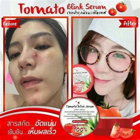 Serum Blink 3 tomato blink serum 50g thailand best selling products
