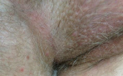 herpes in the groin area small red itchy bumps on skin book covers