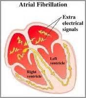 light headed shortness of breath racing health gt mind disease part i