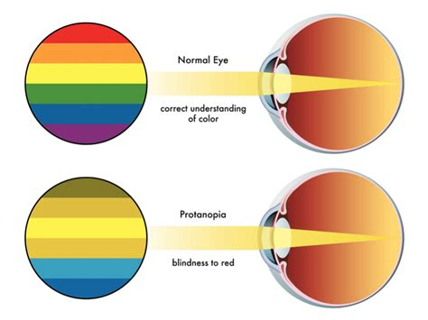 treatment for color blindness how to cure color blindness naturally iris