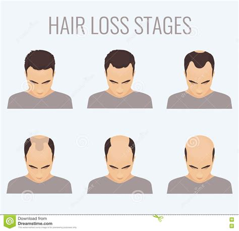 is hair loss pattern related to body mass index female body hair pattern www imgkid com the image kid