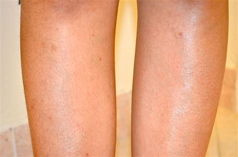 brazilian wax photos before and after female waxing brazilian wax before and after