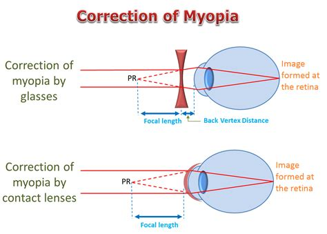 Correction Type myopia features causes clinical types comlications and
