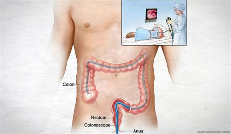 Disadvantage Of Detox Cleanses Site Edu by Advantages And Disadvantages Of Colon Cleansing