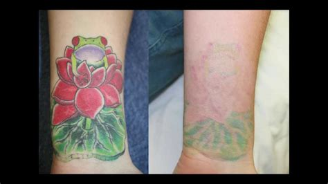 before and after color tattoo removal youtube