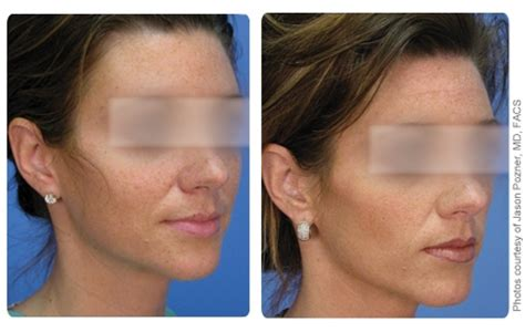 laser treatment freckles age sun damage spots pigmented