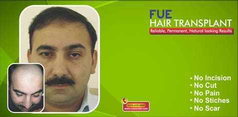 how much does bosley cost on average how much does dr diep charge hair transplant dr diep