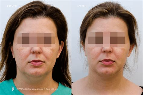 how to contour face jowles neck contouring 77p gallery 77p gallery