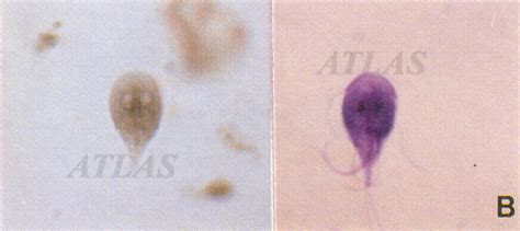 Stool Giardia by Ultimate Zone Giardia In Humans