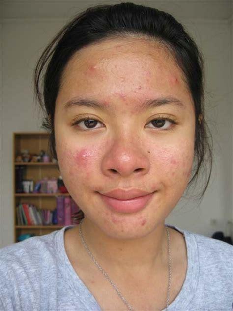 gambar wajah berjerawat cara menghilangkan jerawat dan bekasnya secara alami