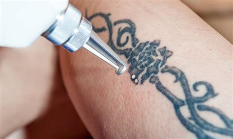 tattoo removal deals removal stingray groupon