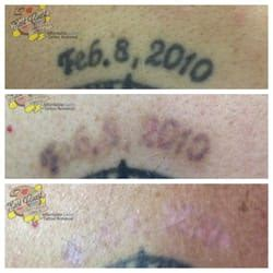 east coast laser tattoo removal east coast laser removal 30 photos