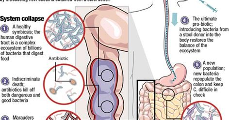 String Fecal Matter Detox by Fecal Transplant Chart From My Website The High Tech