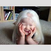 Albino Japanese...