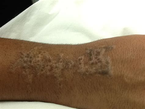 scar from tattoo removal redding laser removal