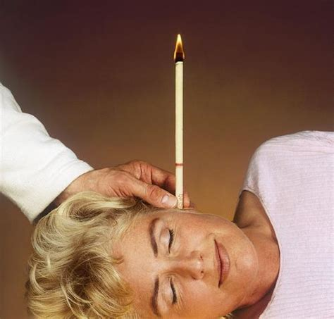 Holistic Ear Wax Removal Candle by Ear Candling Gorge Wellbeing Centre Telford