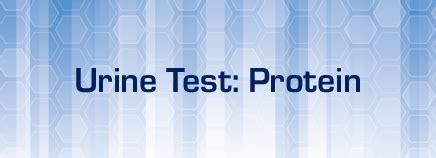 protein 1 in urine urine test protein