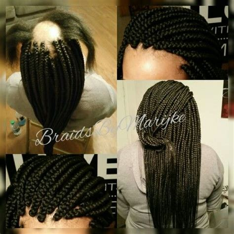 alopecia braided hairstyles my client suffers from alopecia but you cannot tell