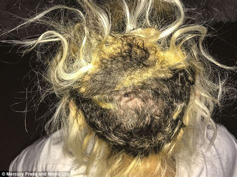 pictures after weave removal durham student had bald patches from hair extensions