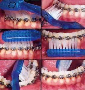 braces at home how to clean brush your braces at home orthodontic
